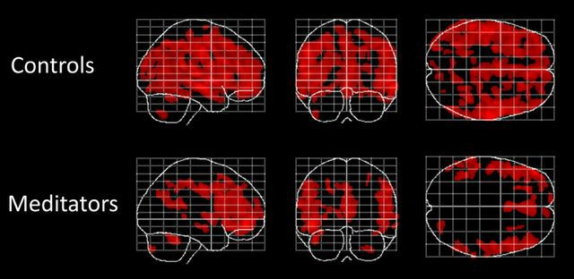 Luders_Figure-frontiers-psychology-aging-meditation.jpg